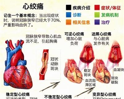 """心季是什么症状,请问一下""""心季""""的症状是什么啊?"""